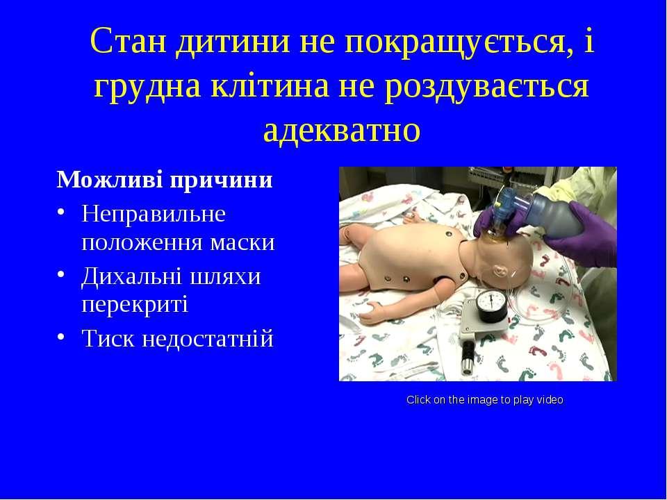 Стан дитини не покращується, і грудна клітина не роздувається адекватно Можли...
