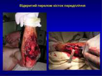Відкритий перелом кісток передпліччя