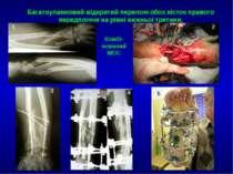 Багатоуламковий відкритий перелом обох кісток правого передпліччя на рівні ни...