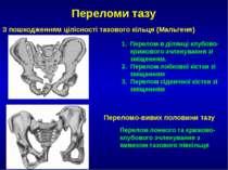 Переломи тазу З пошкодженням цілісності тазового кільця (Мальгеня) Перелом в ...