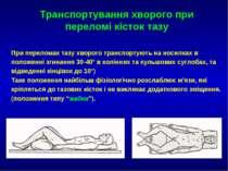 Транспортування хворого при переломі кісток тазу При переломах тазу хворого т...