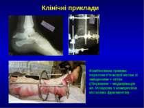 Клінічні приклади Комбінована травма: перелом п'яткової кістки зі зміщенням +...
