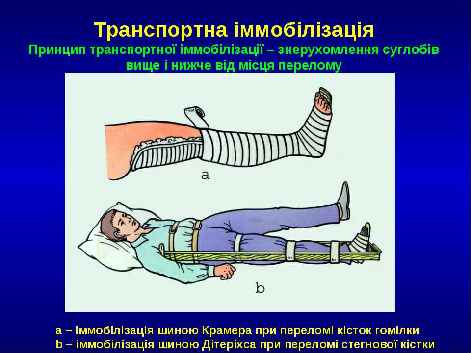 a – іммобілізація шиною Крамера при переломі кісток гомілки b – іммобілізація...