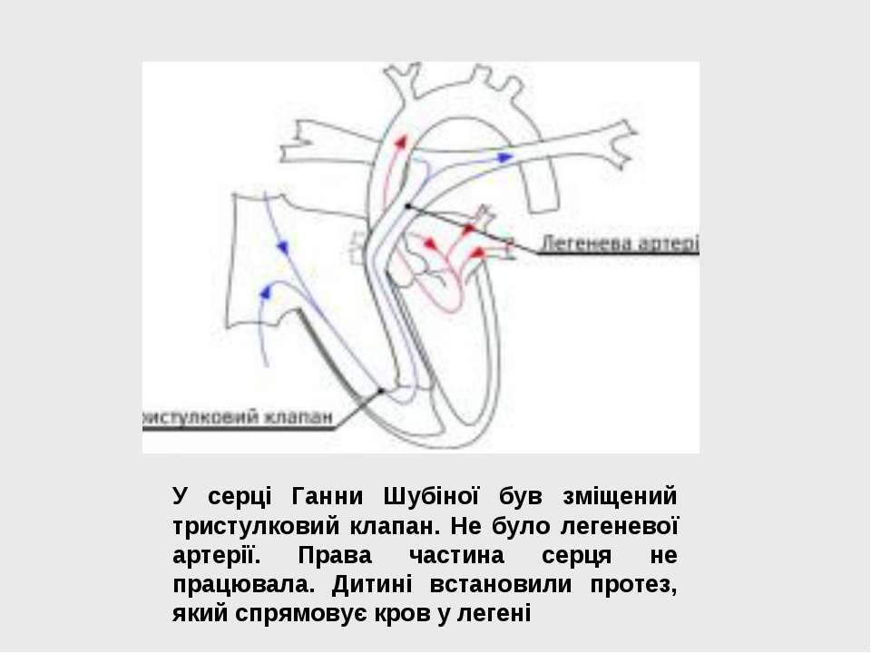 У серці Ганни Шубіної був зміщений тристулковий клапан. Не було легеневої арт...