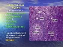 Лімфатичний вузлик Складається з: периартериальної; центра размно-ження; мант...