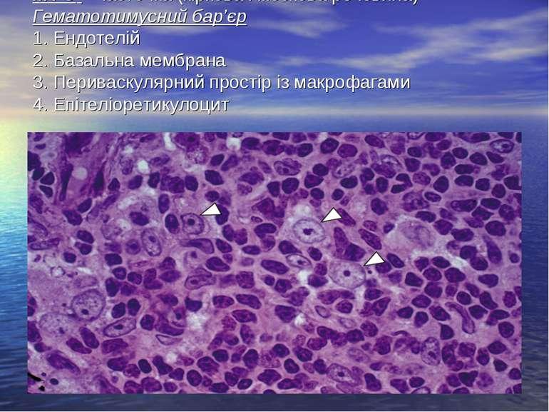 МФО – часточка (кіркова і мозкова речовина) Гематотимусний бар'єр 1. Ендотелі...