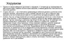 Херувизм Однією із форм фіброзної дисплазії є херувизм. У літературі це захво...