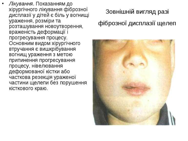 Зовнішній вигляд разі фіброзної дисплазії щелеп Лікування. Показанням до хіру...