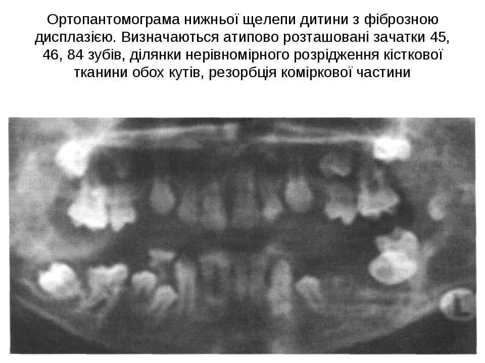 Ортопантомограма нижньої щелепи дитини з фіброзною дисплазією. Визначаються а...