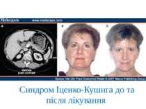 Синдром Іценко-Кушига до та після лікування