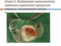 Етап 3: Видалення патологічно змінених каріозним процесом тканин і визначення...