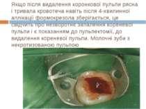 Якщо після видалення коронкової пульпи рясна і тривала кровотеча навіть після...