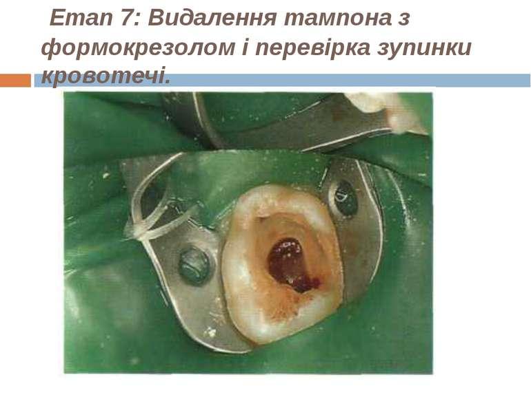 Етап 7: Видалення тампона з формокрезолом і перевірка зупинки кровотечі.