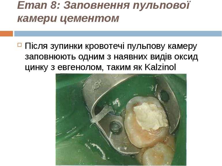 Етап 8: Заповнення пульпової камери цементом Після зупинки кровотечі пульпову...