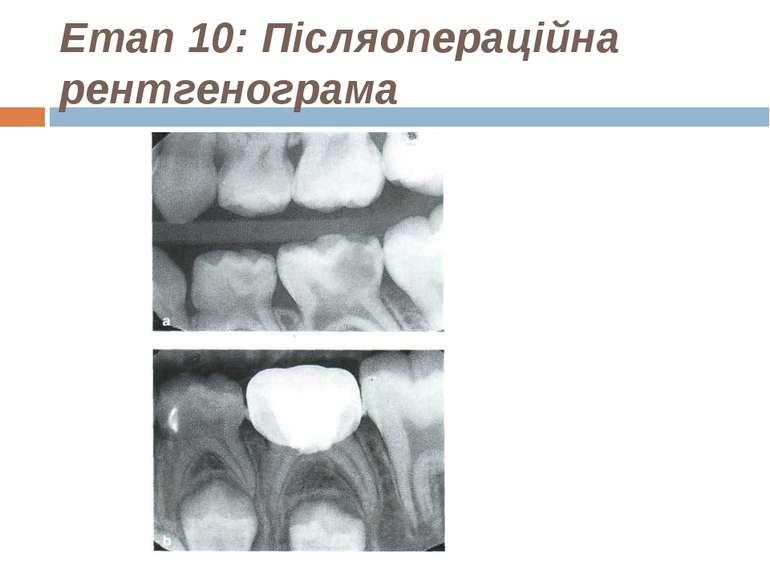 Етап 10: Післяопераційна рентгенограма