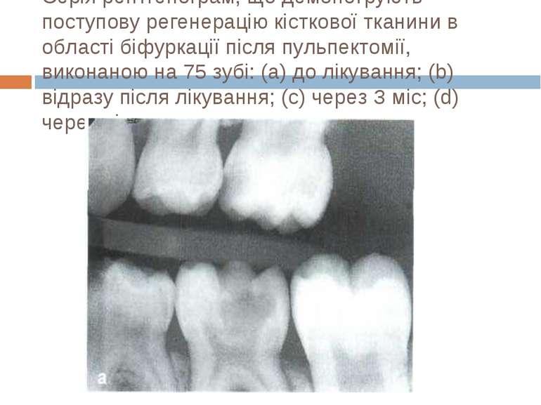Серія рентгенограм, що демонструють поступову регенерацію кісткової тканини в...