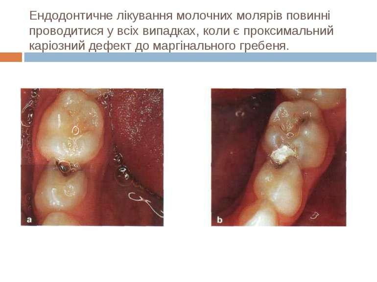 Ендодонтичне лікування молочних молярів повинні проводитися у всіх випадках, ...