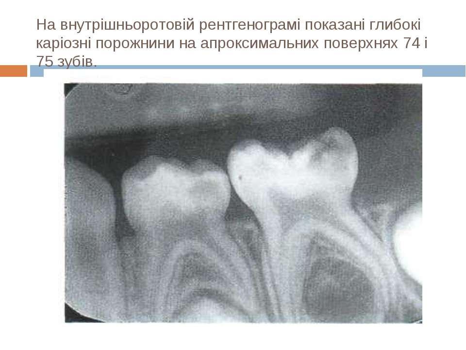 На внутрішньоротовій рентгенограмі показані глибокі каріозні порожнини на апр...