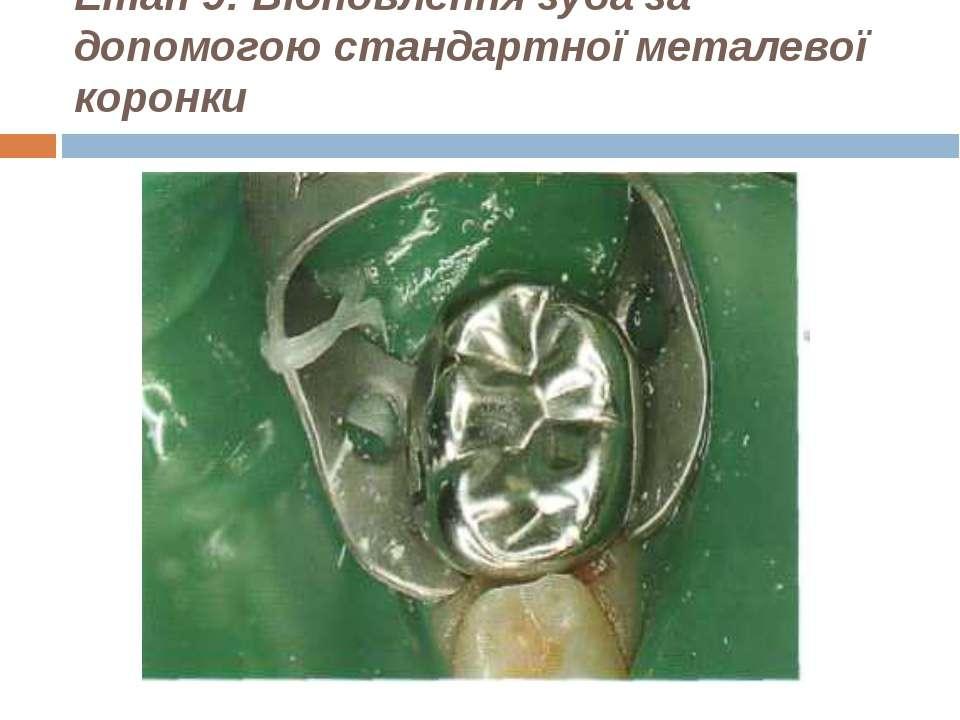 Етап 9: Відновлення зуба за допомогою стандартної металевої коронки
