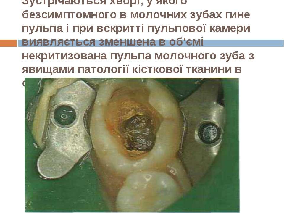 Зустрічаються хворі, у якого безсимптомного в молочних зубах гине пульпа і пр...