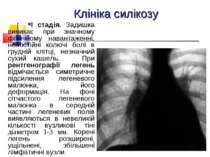 Клініка силікозу І стадія. Задишка виникає при значному фізичному навантаженн...
