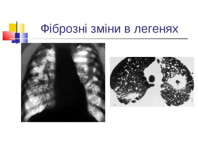 Фіброзні зміни в легенях