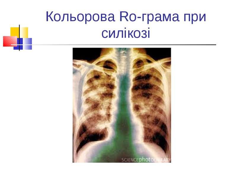 Кольорова Ro-грама при силікозі