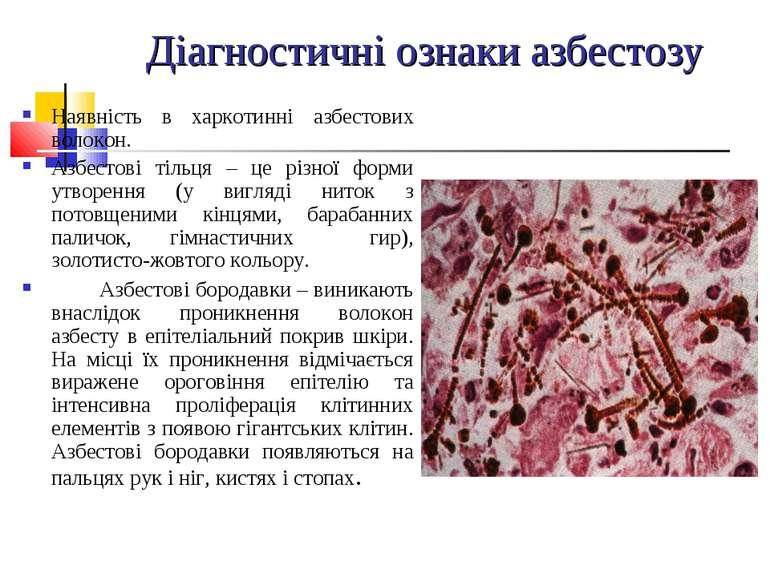 Діагностичні ознаки азбестозу Наявність в харкотинні азбестових волокон. Азбе...