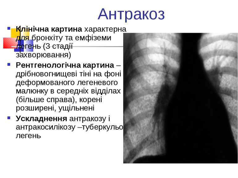 Антракоз Клінічна картина характерна для бронхіту та емфіземи легень (3 стаді...