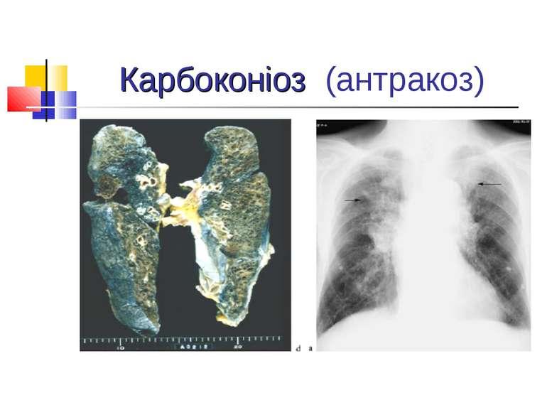 Карбоконіоз (антракоз)