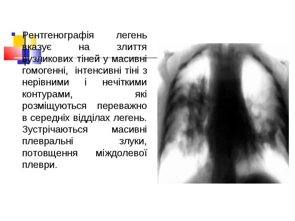 Рентгенографія легень вказує на злиття вузликових тіней у масивні гомогенні, ...