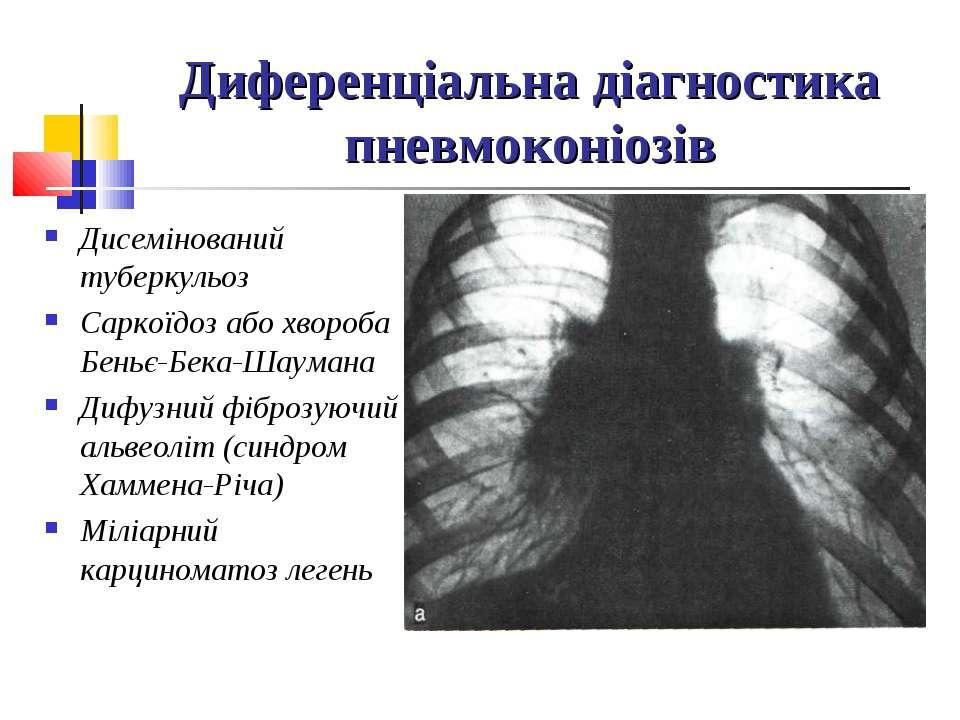 Диференціальна діагностика пневмоконіозів Дисемінований туберкульоз Саркоїдоз...