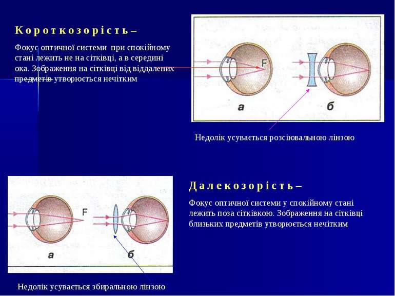 К о р о т к о з о р і с т ь – Фокус оптичної системи при спокійному стані леж...