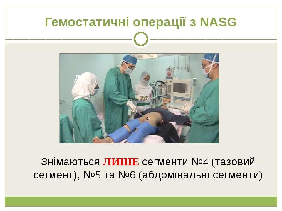 Гемостатичні операції з NASG Знімаються ЛИШЕ сегменти №4 (тазовий сегмент), №...