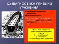 (2) ДІАГНОСТИКА ГЛИБИНИ УРАЖЕННЯ а) Визначення порушення кровообігу Метод нат...