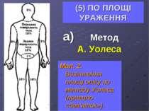 (5) ПО ПЛОЩІ УРАЖЕННЯ а) Метод А. Уолеса Мал. 2. Визначення площі опіку по ме...