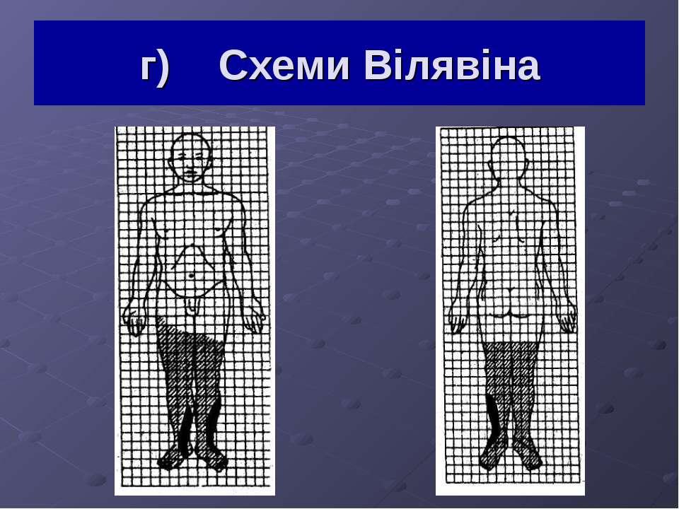 г) Схеми Вілявіна
