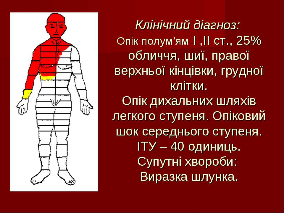 Клінічний діагноз: Опік полум'ям I ,II ст., 25% обличчя, шиї, правої верхньої...