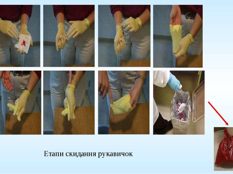 Етапи скидання рукавичок