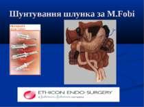 Шунтування шлунка за M.Fobi
