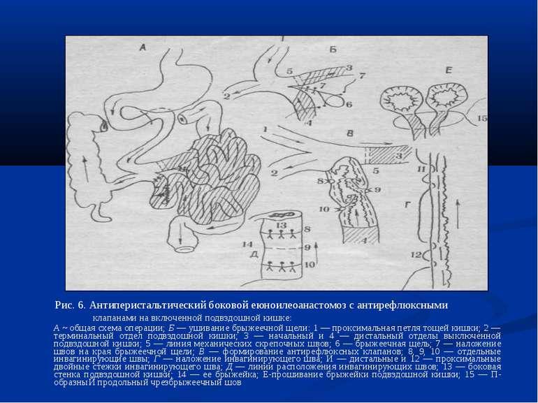 Рис. 6. Антиперистальтический боковой еюноилеоанастомоз с антирефлюксными кла...