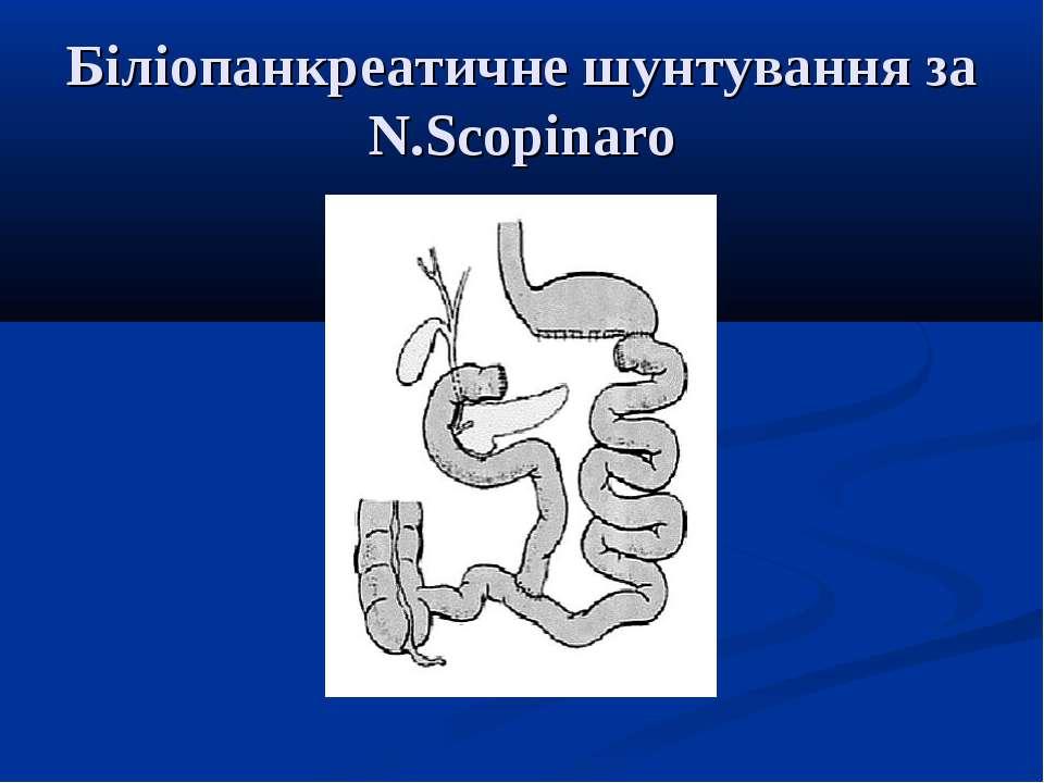 Біліопанкреатичне шунтування за N.Scopinaro