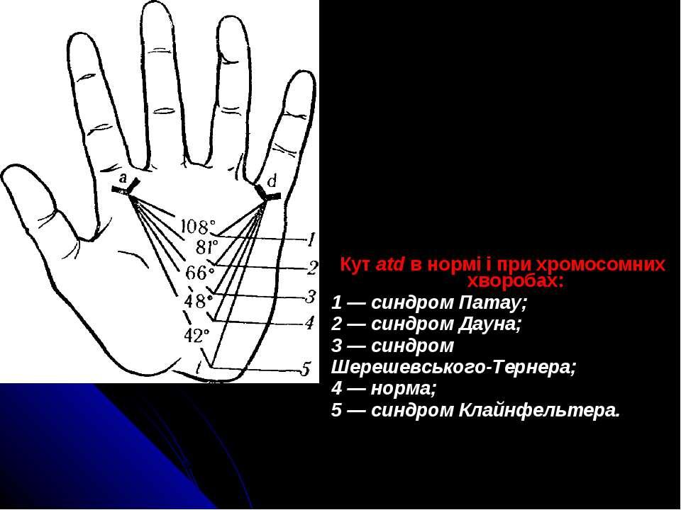 Кут atd в нормі і при хромосомних хворобах: 1 — синдром Патау; 2 — синдром Да...