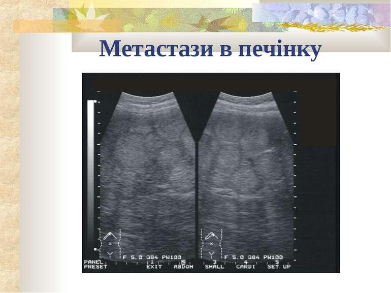 Метастази в печінку