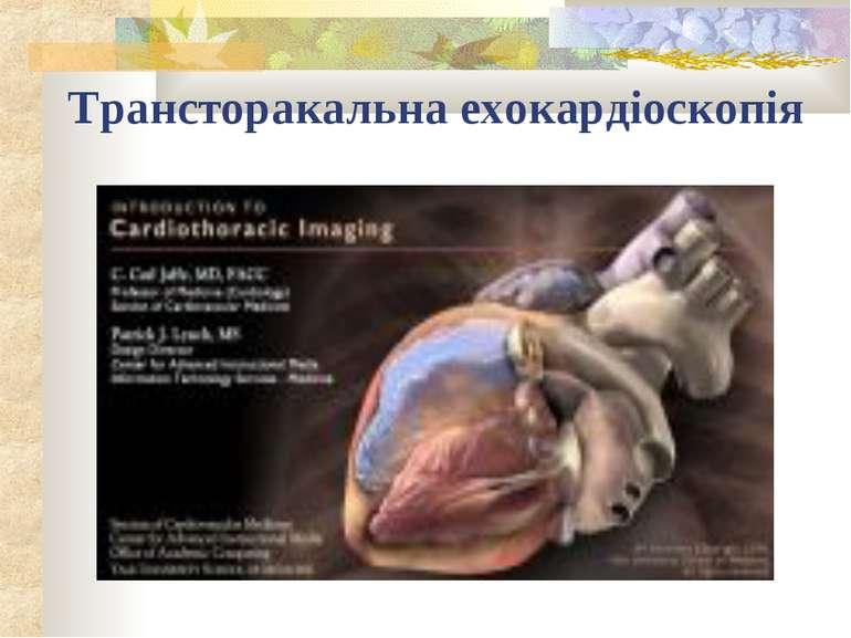 Трансторакальна ехокардіоскопія