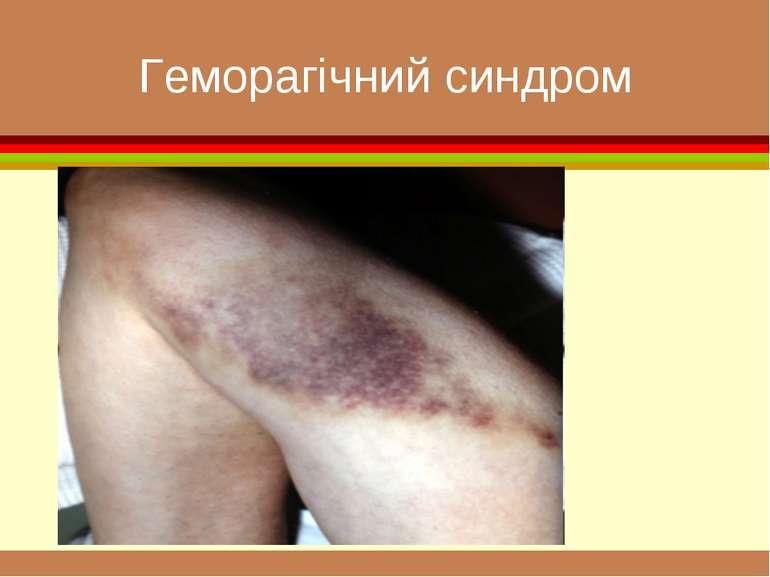 Геморагічний синдром