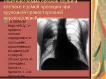 Рентгенограмма органов грудной клетки в прямой проекции при крупозной правост...