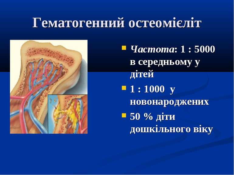 Гематогенний остеомієліт Частота: 1 : 5000 в середньому у дітей 1 : 1000 у но...