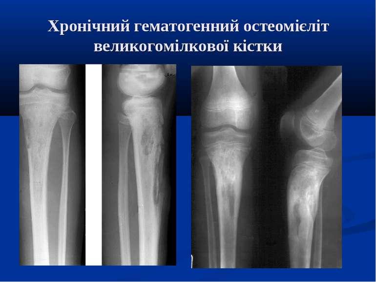 Хронічний гематогенний остеомієліт великогомілкової кістки
