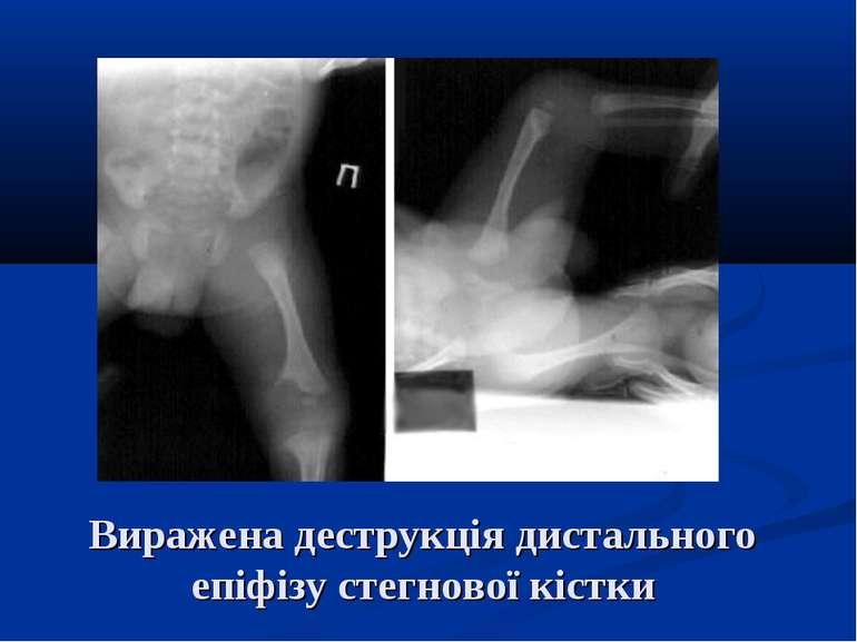 Виражена деструкція дистального епіфізу стегнової кістки